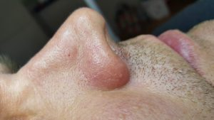 Dilated capillaries immediately after treatment with ACP.