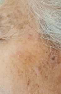 After removal of sebhorreic keratoses